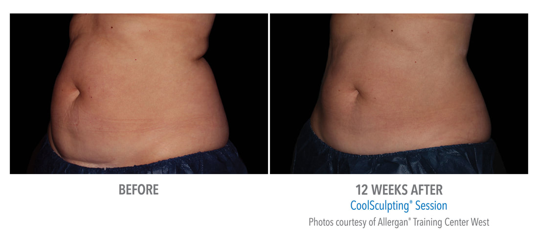 coolsculpting belly 12 weeks