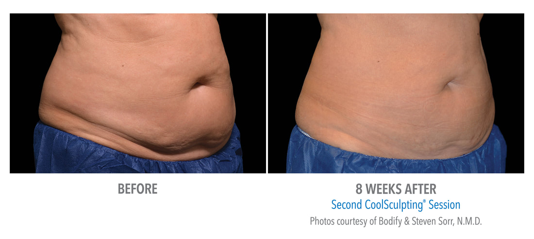 coolsculpting female belly 8 weeks