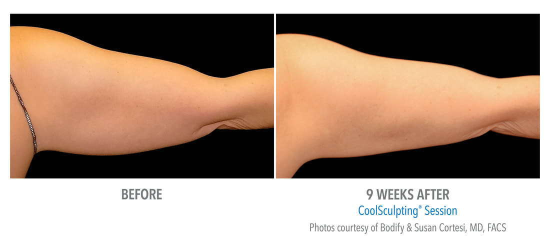 coolsculpting arm 9 weeks