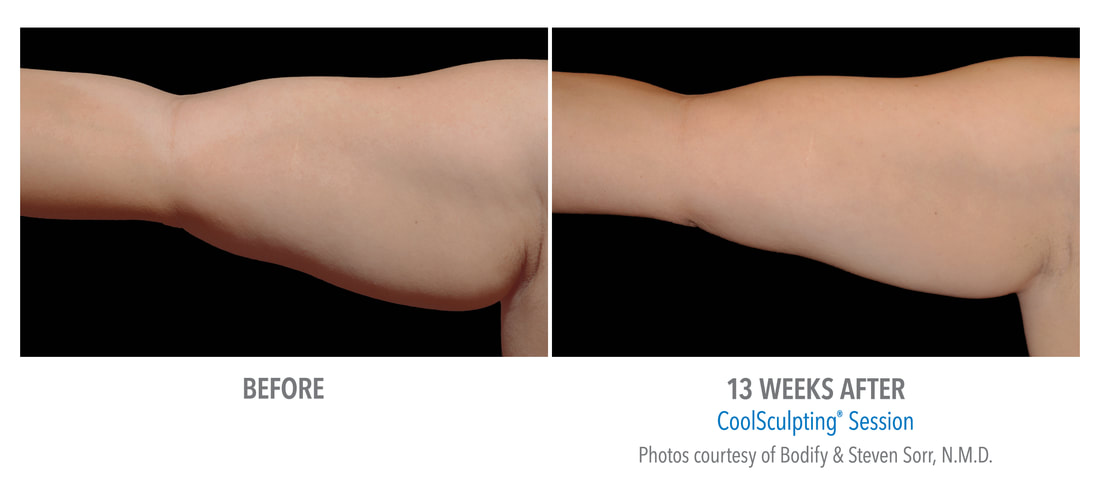 coolsculpting arm 13 weeks