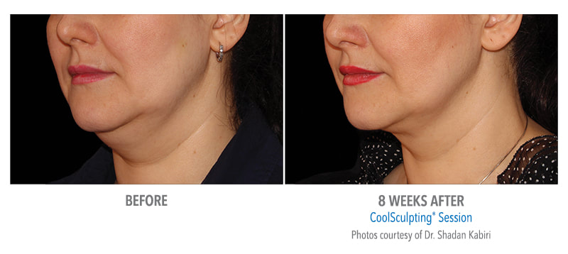 coolsculpting chin 8 weeks