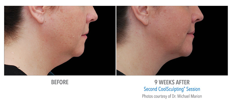 coolsculpting chin 9 weeks