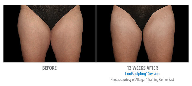 coolsculpting upper thighs 13 weeks
